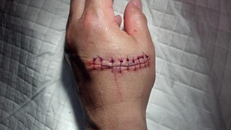 handoperation